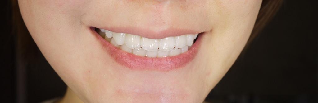【牙套日記】終於甘願牙齒美白啦!聖偉牙醫-電漿美白讓我BLING BLING♥