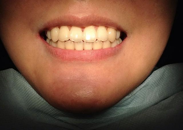 【正顎日記】歷近1年8個月的正顎+矯正♥我終於拆牙套啦