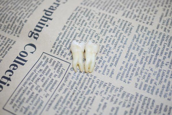 【牙套日記】我HOLD住了><我真的變牙套妹了